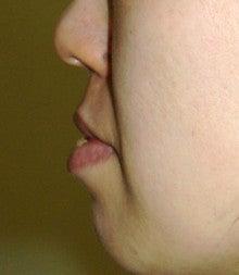 日本美容外科学会認定専門医Dr.石原の診療ブログ~いろんなオペやってます~-口唇3