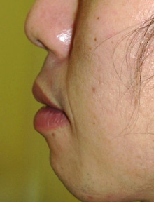 日本美容外科学会認定専門医Dr.石原の診療ブログ~いろんなオペやってます~-口唇1