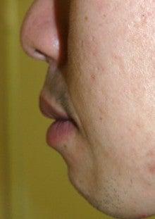 日本美容外科学会認定専門医Dr.石原の診療ブログ~いろんなオペやってます~-口唇2