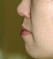 日本美容外科学会認定専門医Dr.石原の診療ブログ~いろんなオペやってます~-口唇4
