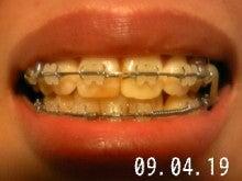 *30からの歯列矯正ブログ*-090419_211307_ed.jpg