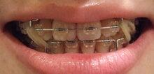 35歳からの歯列矯正奮闘記  ~矯正以外のネタも書かせてよ~-090426-4