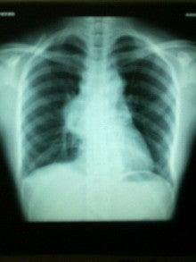 ホジキンリンパ腫