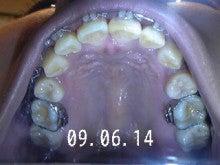 *30からの歯列矯正ブログ*-090614_182527_ed.jpg