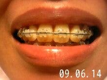 *30からの歯列矯正ブログ*-090614_181726_ed.jpg
