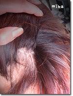 円形脱毛症治療改善!円形脱毛症歴13年の女-円形脱毛症改善予防治療