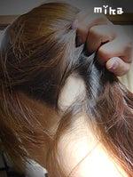円形脱毛症治療改善!円形脱毛症歴13年の女-円形脱毛症に効いたもの