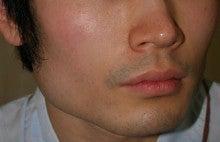 日本美容外科学会認定専門医Dr.石原の診療ブログ~いろんなオペやってます~-輪郭形成