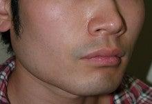 日本美容外科学会認定専門医Dr.石原の診療ブログ~いろんなオペやってます~-輪郭形成 後