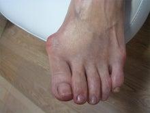 美足でトータルケア ~足ブスになっていませんか?