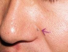 日本美容外科学会認定専門医Dr.石原の診療ブログ~いろんなオペやってます~-ほくろ