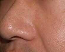 日本美容外科学会認定専門医Dr.石原の診療ブログ~いろんなオペやってます~-ほくろ 後