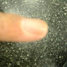 小指切断《指詰め》