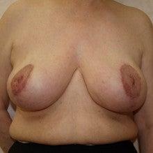 日本美容外科学会認定専門医Dr.石原の診療ブログ~いろんなオペやってます~-乳房縮小 正面 後