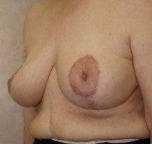 日本美容外科学会認定専門医Dr.石原の診療ブログ~いろんなオペやってます~-乳房縮小 後