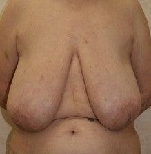 日本美容外科学会認定専門医Dr.石原の診療ブログ~いろんなオペやってます~-乳房縮小 正面