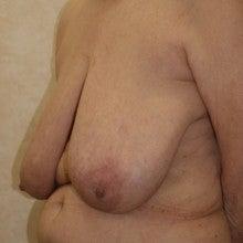 日本美容外科学会認定専門医Dr.石原の診療ブログ~いろんなオペやってます~-乳房縮小