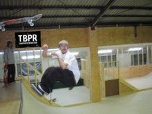 $Pyxis-TBPR