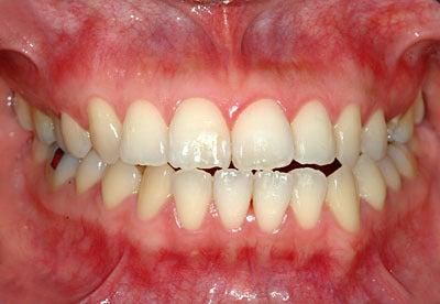 顎痛 歯痛 頭痛 虫歯 激痛 矯正 失敗 顎関節症 名医 顎関節症を ...