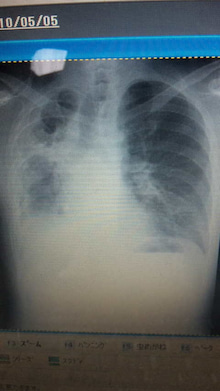 38才医者のガン漂流!OPERATION!