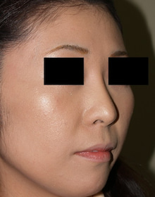 日本美容外科学会認定専門医Dr.石原の診療ブログ~いろんなオペやってます~-隆鼻術 後