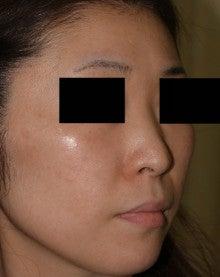 日本美容外科学会認定専門医Dr.石原の診療ブログ~いろんなオペやってます~-隆鼻術