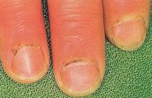 70-2003 図7の所見をしばしば呈する疾患を2つ記せ.|皮膚科専門 ...