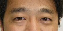 マネードクターの幸せな資産ケア外来-眉毛の手入れ前