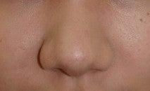 日本美容外科学会認定専門医Dr.石原の診療ブログ~いろんなオペやってます~-鼻尖縮小2 後