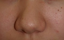 日本美容外科学会認定専門医Dr.石原の診療ブログ~いろんなオペやってます~-鼻尖縮小2