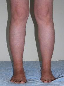 日本美容外科学会認定専門医Dr.石原の診療ブログ~いろんなオペやってます~-下腿・足首 術後