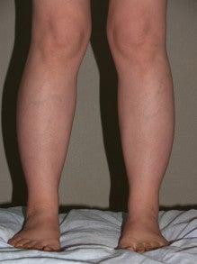 日本美容外科学会認定専門医Dr.石原の診療ブログ~いろんなオペやってます~-下腿・足首
