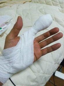 $後藤英樹の三日坊主日記-巨大指