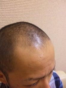 たつやの植毛体験記@湘南美容外科のブログ-100731_0949371.jpg