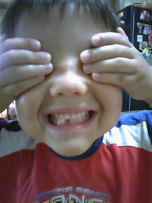 モカモカのブログ-teeth