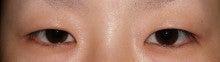 日本美容外科学会認定専門医Dr.石原の診療ブログ~いろんなオペやってます~-埋没法2