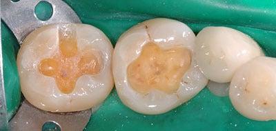 顎関節症 歯科治療 ラストホープ 証明 画像症例集 GVBDO-04100911