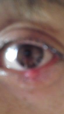 眼の疾患・ものもらい|京都・鍼灸スノルノ|肩こり・腰痛 ...