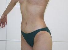 シンシア~Sincerely Yours 銀座の美容外科・美容皮膚科-腹部 腰 脂肪吸引 画像 効果 くびれ