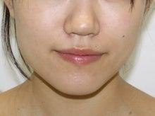 シンシア~Sincerely Yours 銀座の美容外科・美容皮膚科-エラ ボトックス 小顔注射 写真 変化