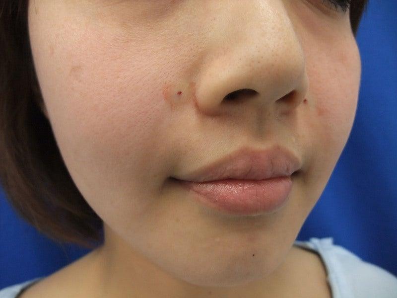 湘南 美容 外科 梅田 アクセス|湘南美容クリニック大阪梅田院【公式】美容整形・美容外科