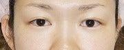 プロの私たちも間違っていた美顔術 ラフォンテ鹿児島  気の美顔術で美と元気を応援する肌力の専門家-二重瞼