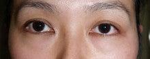 日本美容外科学会認定専門医Dr.石原の診療ブログ~いろんなオペやってます~-下まぶた(Baggy eye)
