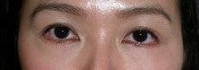 日本美容外科学会認定専門医Dr.石原の診療ブログ~いろんなオペやってます~-下まぶた(Baggy eye)  術後