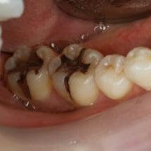 銀歯 白い歯
