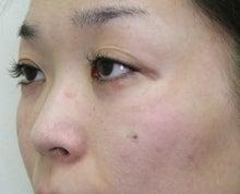 美容外科医 筒井のブログ