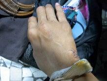 Keitaのセネガル日記-五針縫った