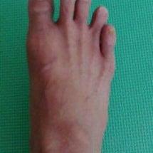 バレリーナの外反母趾…