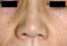 日本美容外科学会認定専門医Dr.石原の診療ブログ~いろんなオペやってます~-鼻翼縮小2