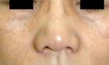 日本美容外科学会認定専門医Dr.石原の診療ブログ~いろんなオペやってます~-鼻翼縮小2 後